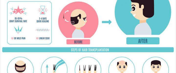 Greffe de cheveux: quels sont les avantages de la technique FUE?